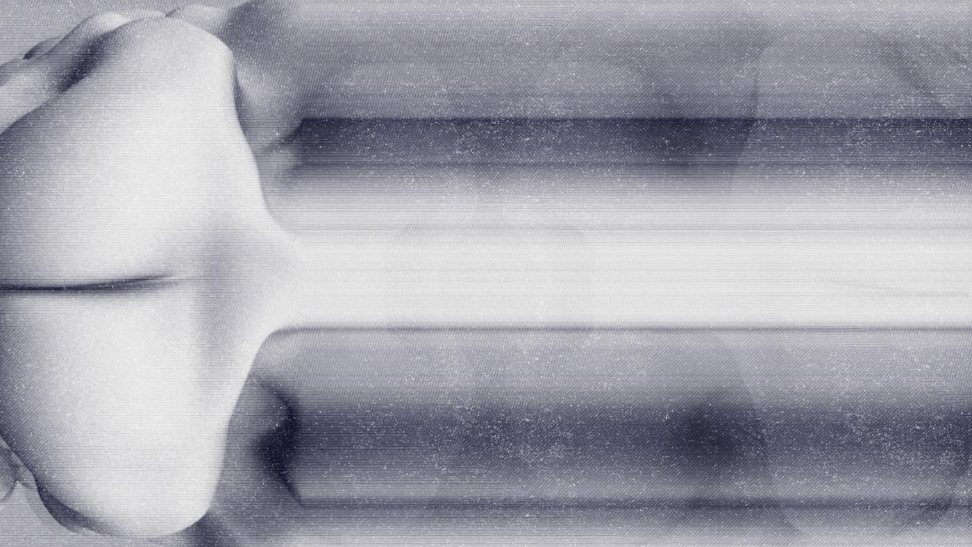 neoplasm_03
